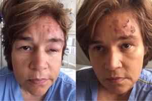 Claudia Rodrigues. Foto do site da O TV Foco que mostra Após infecção, Claudia Rodrigues recebe alta do hospital saiba como ela está