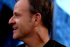 Celebridades Programa. Foto do site da O TV Foco que mostra Rubinho Barrichello mostra cicatriz e fala da retirada de tumor