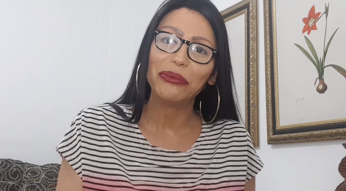 Plásticas de Luisa Marilac estão gerando consequências (Foto: Reprodução)