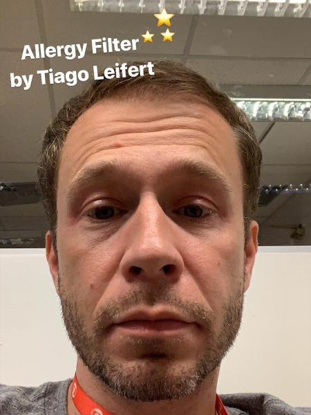 Tiago Leifert teve ataque de alergia (Foto: Reprodução/ Instagram)