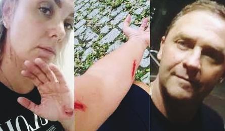 Ana Paula Almeida, ex-paquita de Xuxa, acusa ex-marido de agressão. (Foto: Reprodução/Montage)