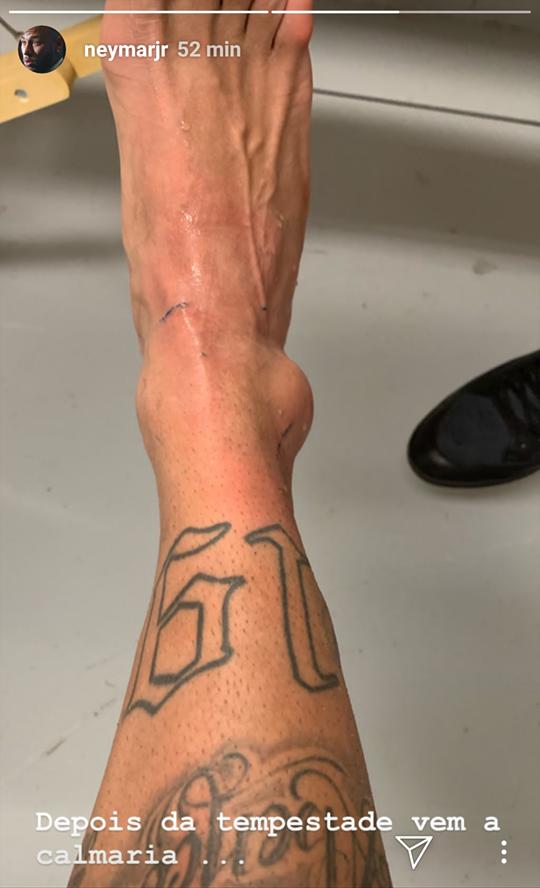 Neymar publicou foto do tornozelo machucado (Foto: Reprodução/Instagram)