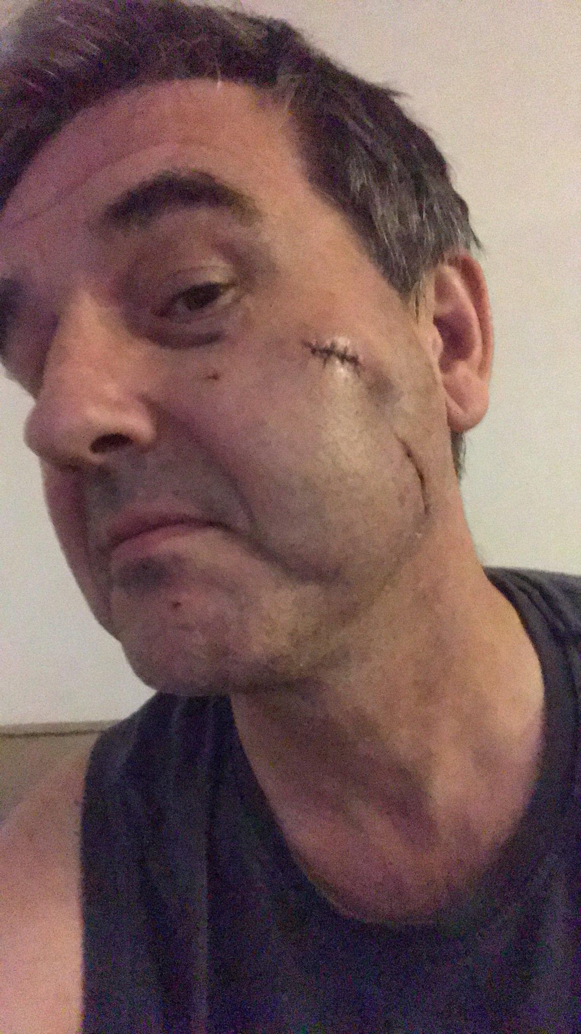 O famoso apresentador esportivo inglês Ian Payne mostrou como seu rosto ficou após ser atacado (Reprodução)