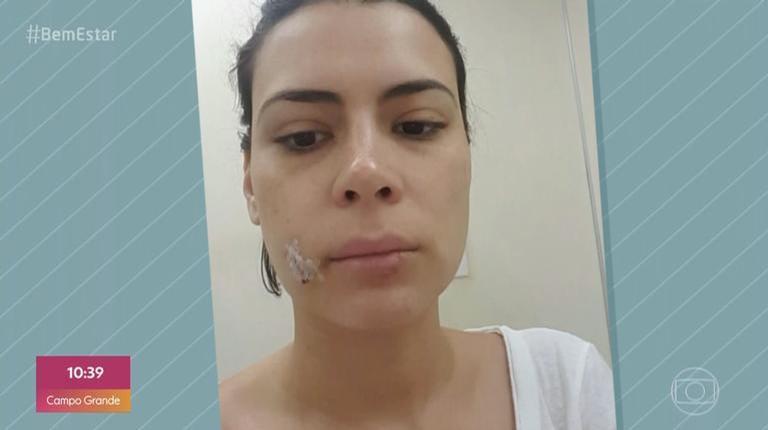 Michelle Loreto mostrou rosto após ataque de sua cadelinha (Foto: Reprodução/TV Globo)
