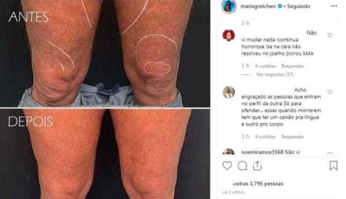 Gretchen mostra procedimento. Foto: Reprodução/Instagram