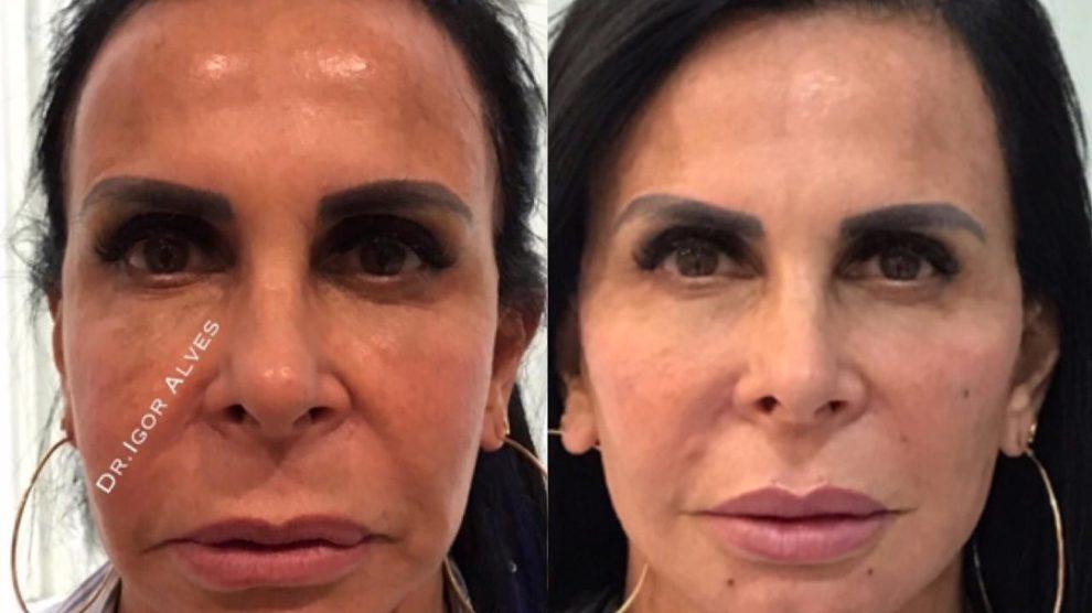 ex-atriz da Globo, Gretchen em antes e depois da harmonização facial (Foto: Reprodução)