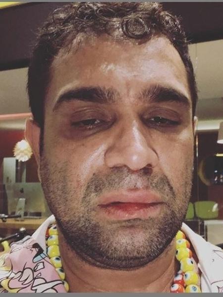 Evandro Santo foi vítima de homofobia e levou um soco na cara após uma apresentação humorística. Foto: Reprodução