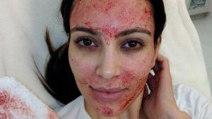 Kim Kardashian processa médico após tratamento facial (Foto: Reprodução)
