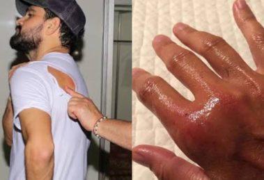Luciano Camargo é atacado por abelha durante show e Daniela Escobar sofre com mordida de seu gato de estimação (Montagem: TV Foco)