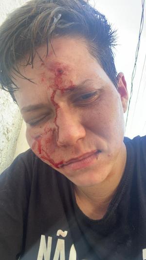 Karol Eller, amiga íntima da família Bolsonaro, foi brutalmente agredida. Foto: Reprodução