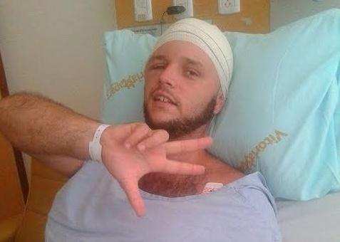 Paulo Henrique após um acidente doméstico ocorrido em 2013 (Foto: Reprodução)