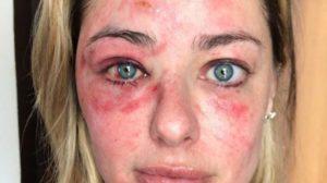 A campeã do MasterChef ficou com rosto desfigurado após queda - Foto: Reprodução/Instagram