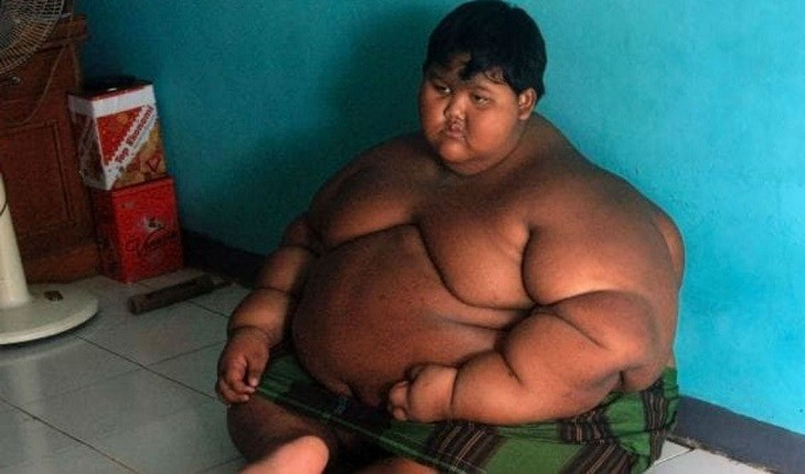 Lembra dele? Respire fundo antes de ver como está o menino mais gordo do mundo agora (Foto: Reprodução)