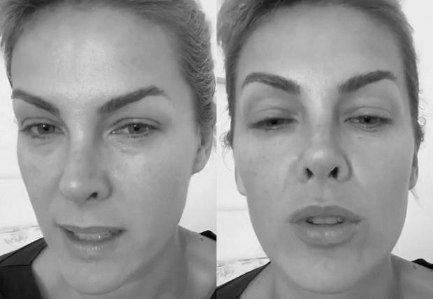 Ana Hickmann está com suspeita de Covid-19 - (Reprodução/Instagram)