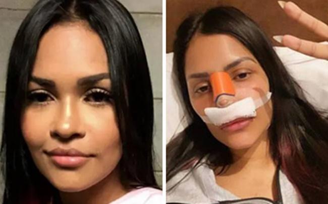 Flayslane do BBB20 apareceu com curativos no rosto após cirurgia (Foto: Montagem/TV Foco)