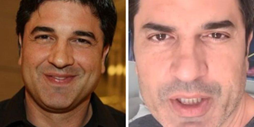 RedeTV: Edu Guedes passou por cirurgia após acidente com automotor (Foto: Montagem/TV Foco)