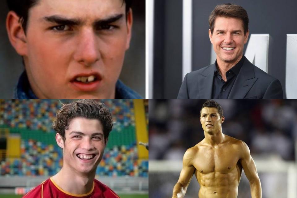 Surpreenda-se com o antes e depois de alguns famosos (Fotos: Reprodução)