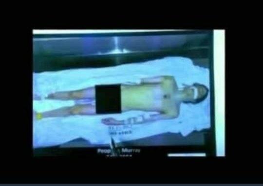 Suposta foto de Michael Jackson em tanque de nitrogênio (Foto: Reprodução)