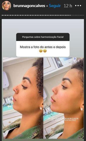 Esposa de Ludmilla, a bailarina Brunna Gonçalves contou que fez harmonização facial (Foto: Reprodução/ Instagram)