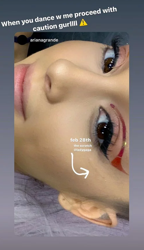 Stories feito por Ariana Grande mostrando o arranhão (Foto: Reprodução)