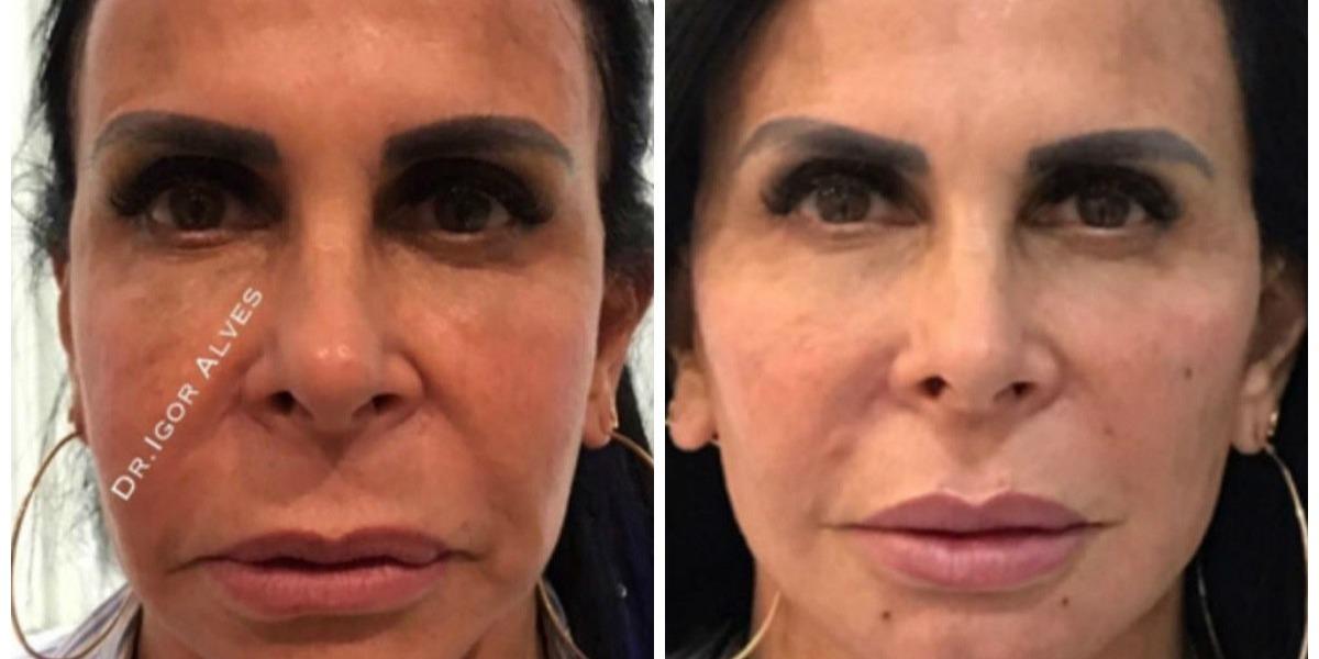 Gretchen antes e depois do processo (Foto: Reprodução)