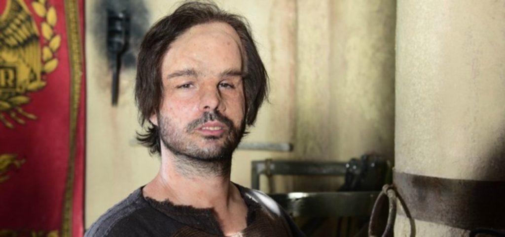 Sergio Abreu é Hidrópico na novela Jesus