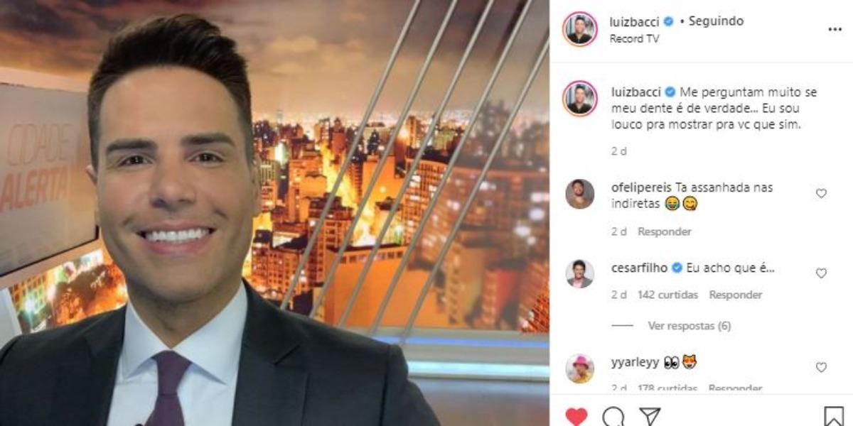 Luiz Bacci fez revelação sobre os seus dentes branquinhos (Foto: Reprodução/Instagram)