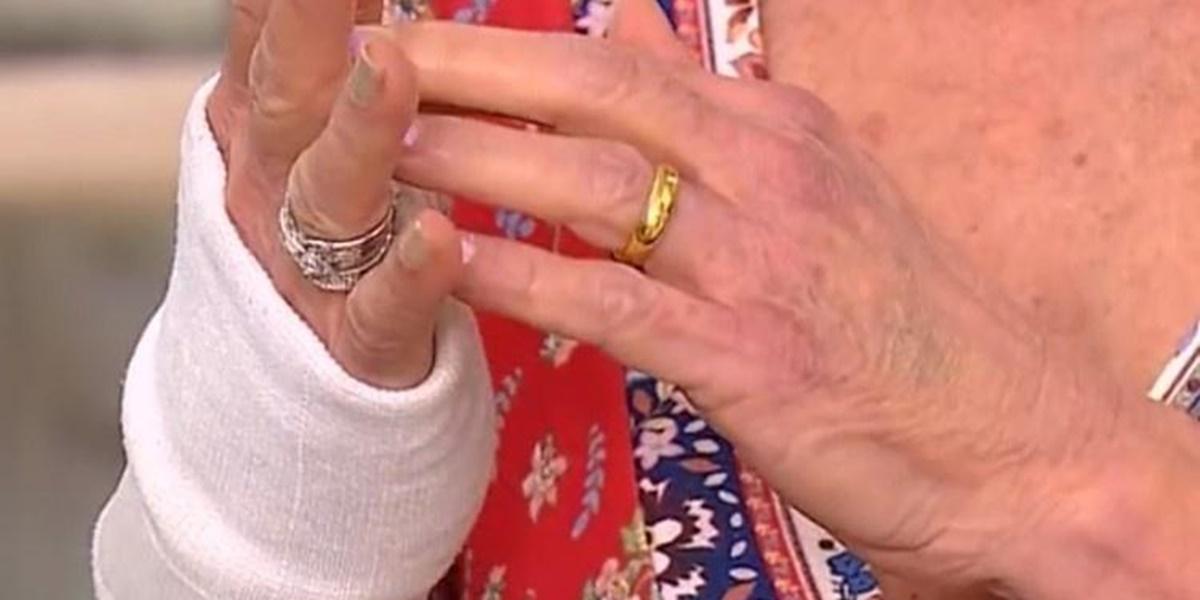 Ana Maria Braga exibindo a sua mão enfaixada (Foto: Reprodução)