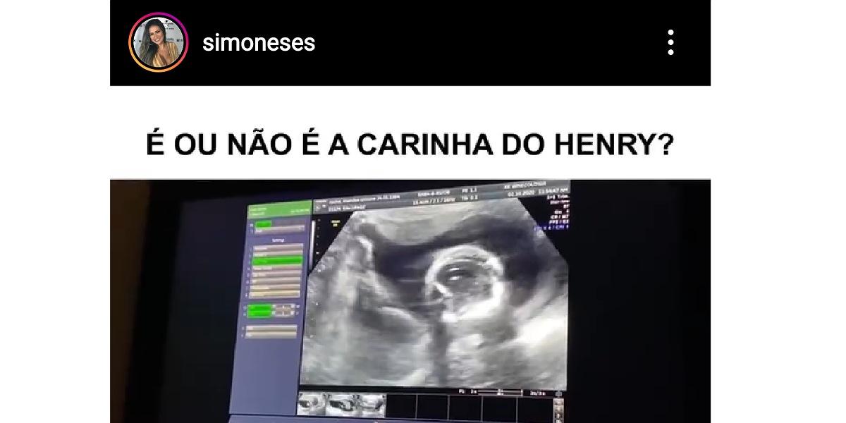 Simone mostra ultrassonografia da primeira filha (Foto: Reprodução/Instagram)