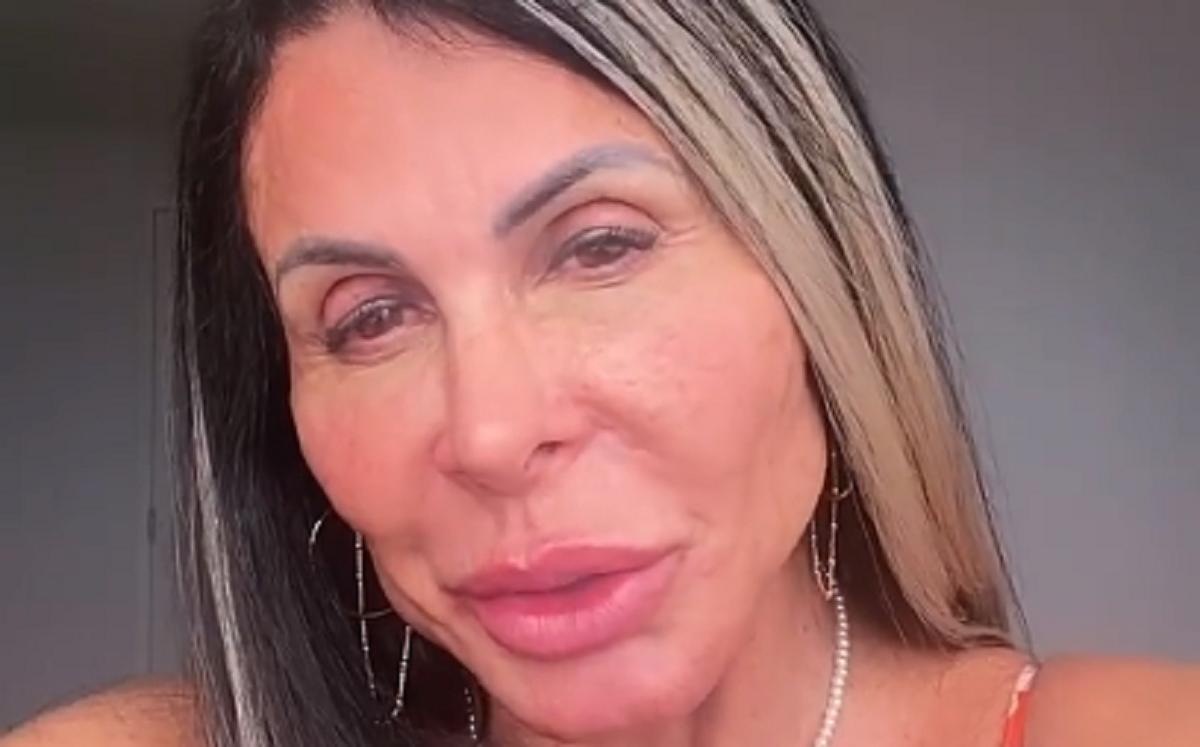 Gretchen após a nova harmonização facial (Foto: Reprodução)