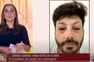 Danilo Gentili ficou com o rosto desfigurado ao vivo (Foto reprodução)