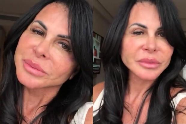 Gretchen passa por nova cirurgia no rosto